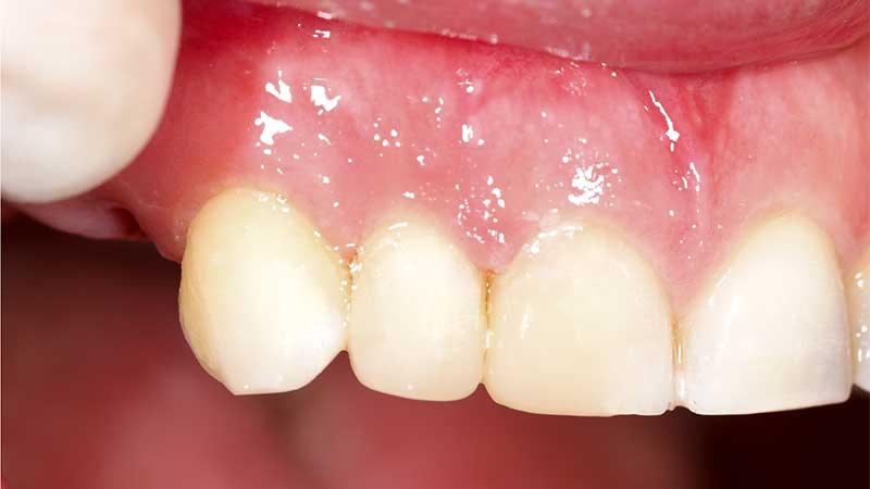 dental-crowns-after