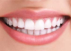 porcelain dental veneers