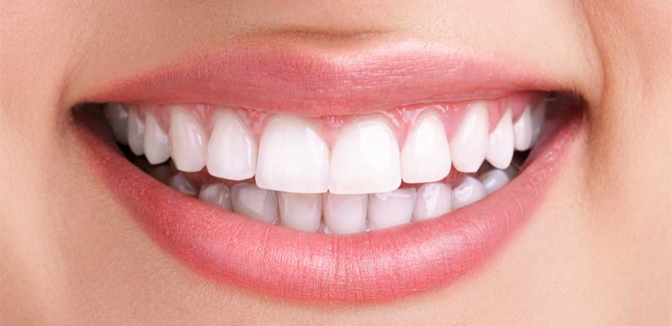 porcelain dental veneers clinic