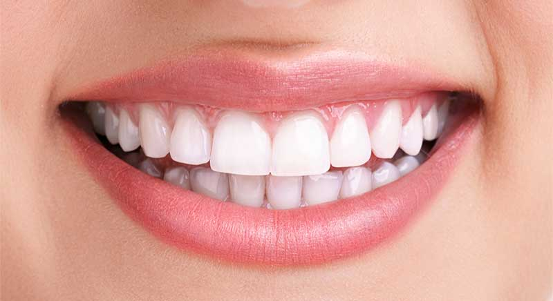 teeth whitening after image