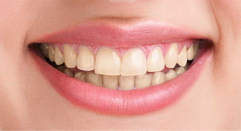 teeth-whitening-before