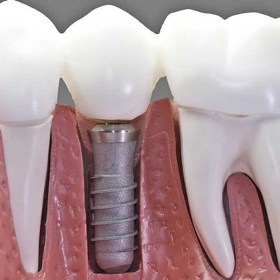 Why do dental implants fail