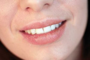 Dry Mouth Symptoms and Causes